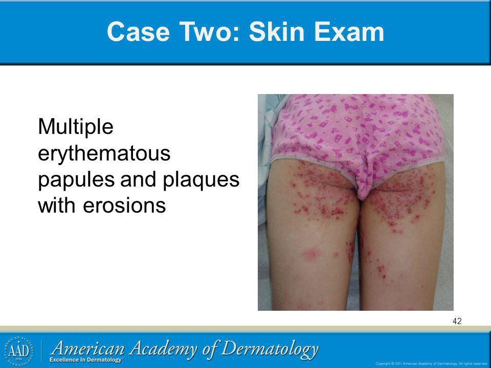 Case Two: Skin Exam Multiple erythematous papules and plaques with erosions