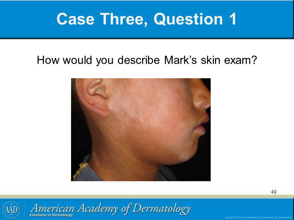 How would you describe Mark's skin exam