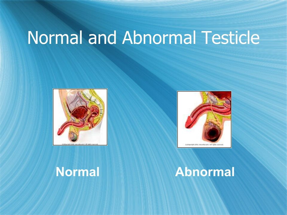 Normal and Abnormal Testicle