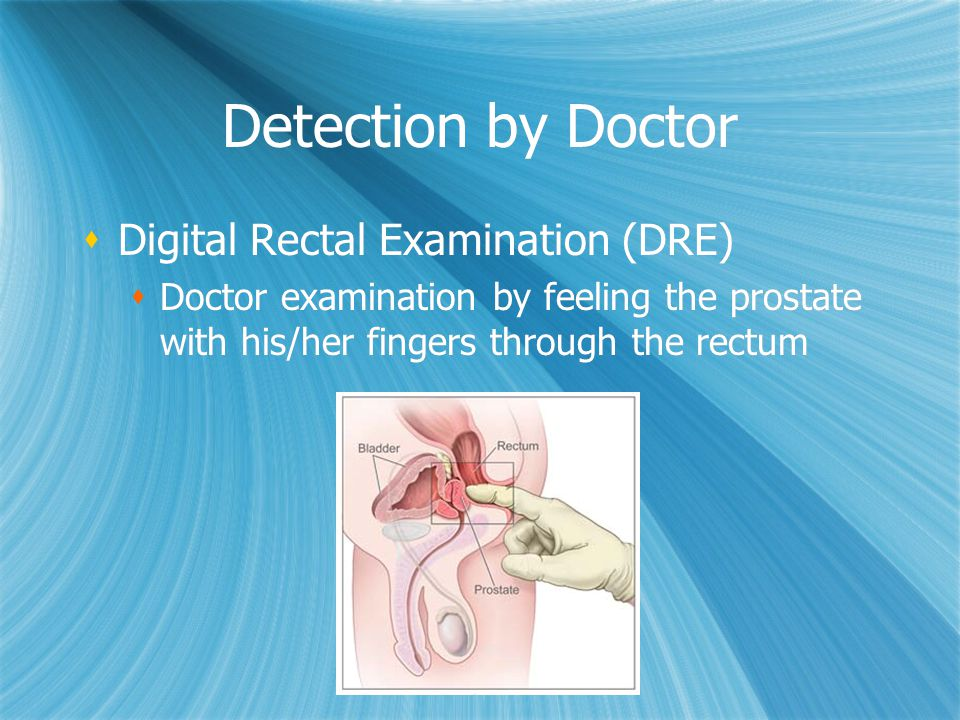 Detection by Doctor Digital Rectal Examination (DRE)