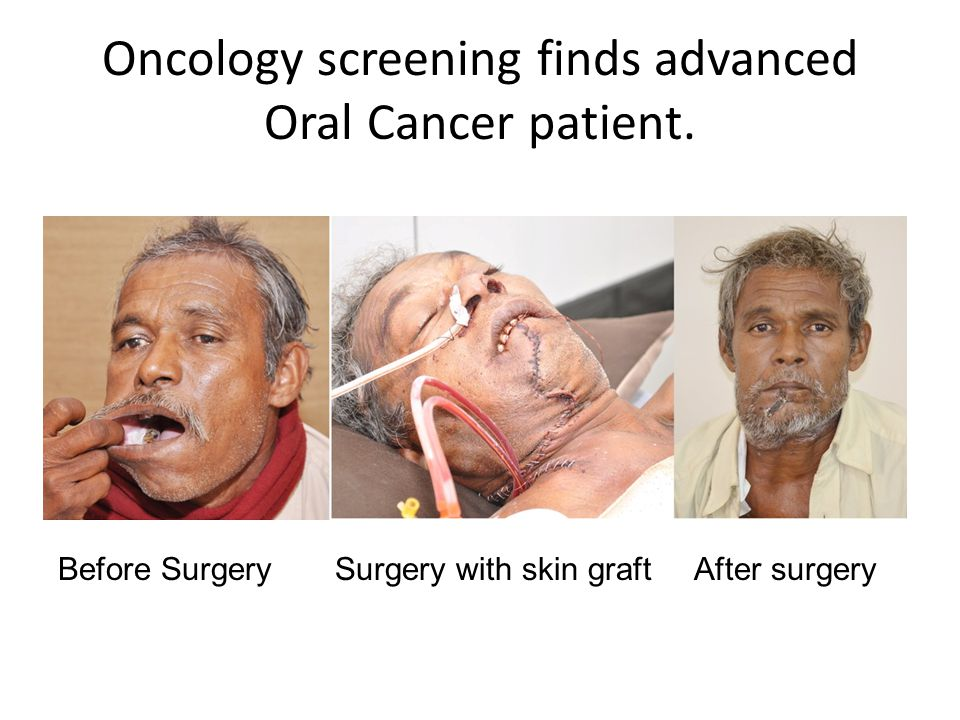 Oncology screening finds advanced Oral Cancer patient.