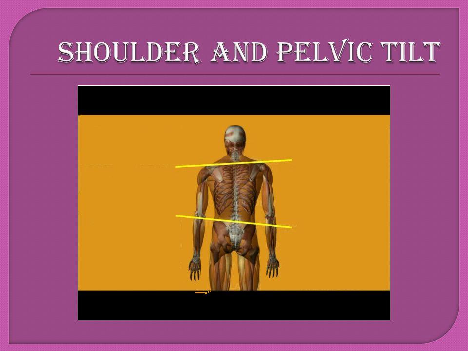 SHOULDER AND PELVIC TILT