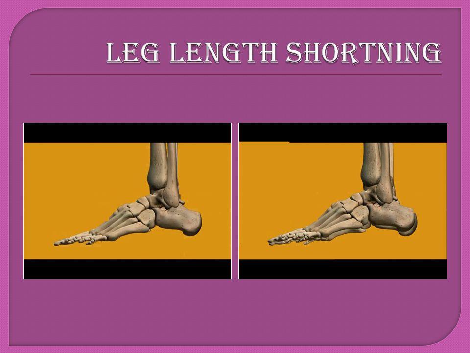 LEG LENGTH SHORTNING