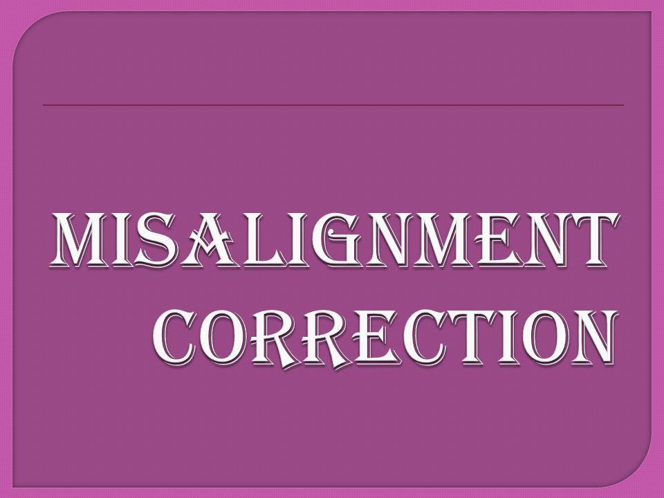 misAlignment CORRECTION