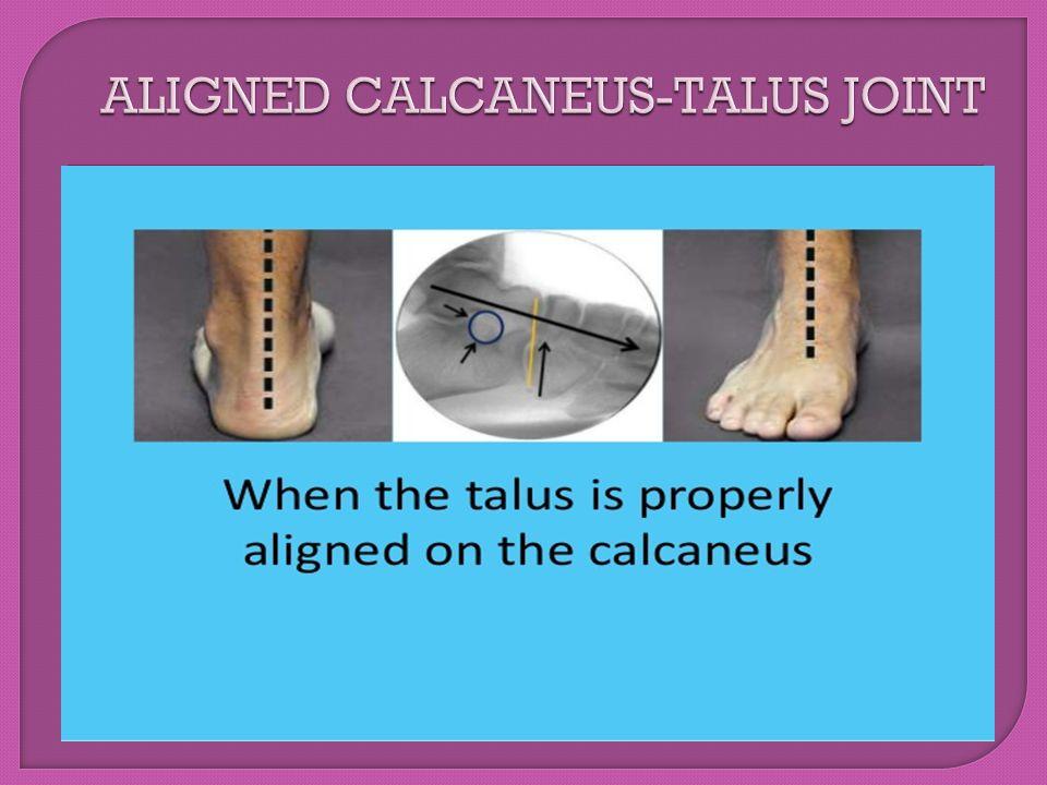 ALIGNED CALCANEUS-TALUS JOINT