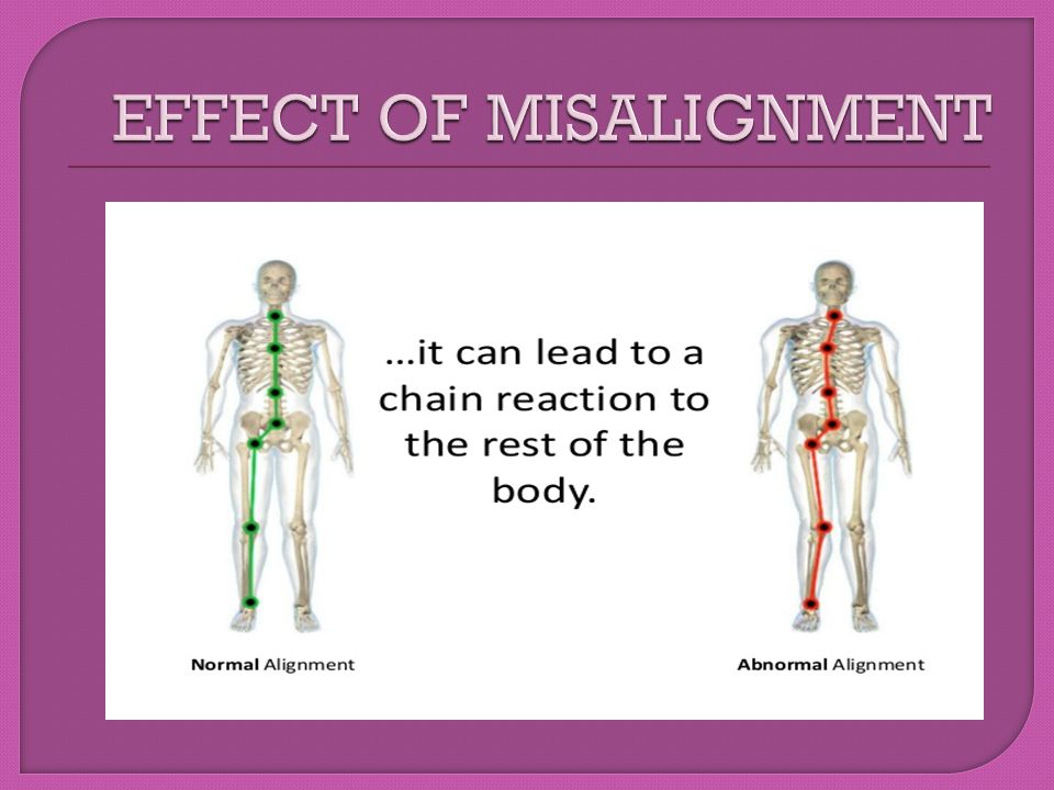EFFECT OF MISALIGNMENT