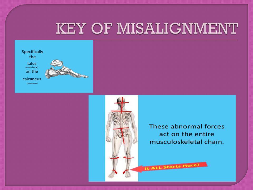 KEY OF MISALIGNMENT