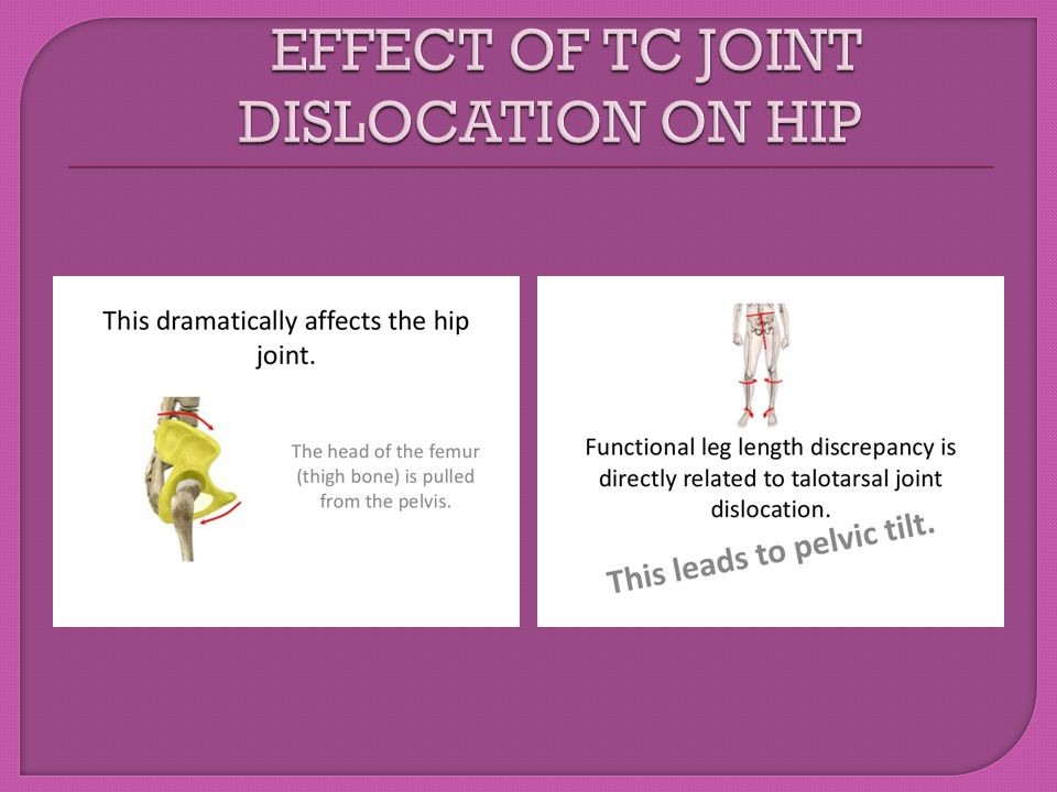 EFFECT OF TC JOINT DISLOCATION ON HIP