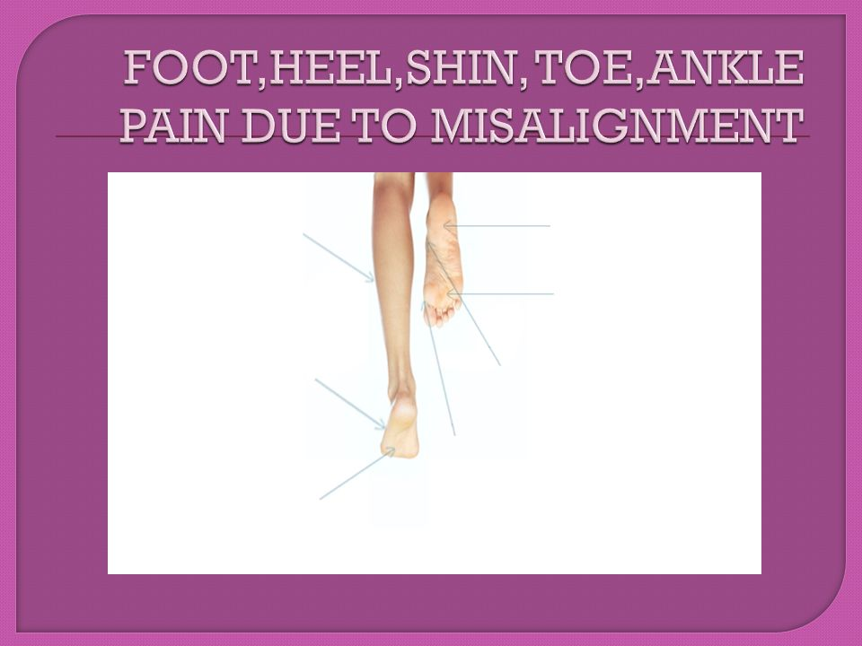 FOOT,HEEL,SHIN, TOE,ANKLE PAIN DUE TO MISALIGNMENT