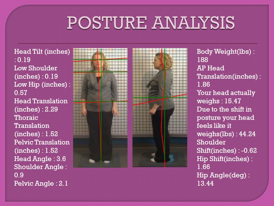 POSTURE ANALYSIS Head Tilt (inches) : 0.19