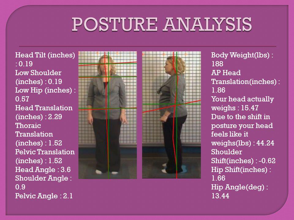 POSTURE ANALYSIS Head Tilt (inches) : 0.19