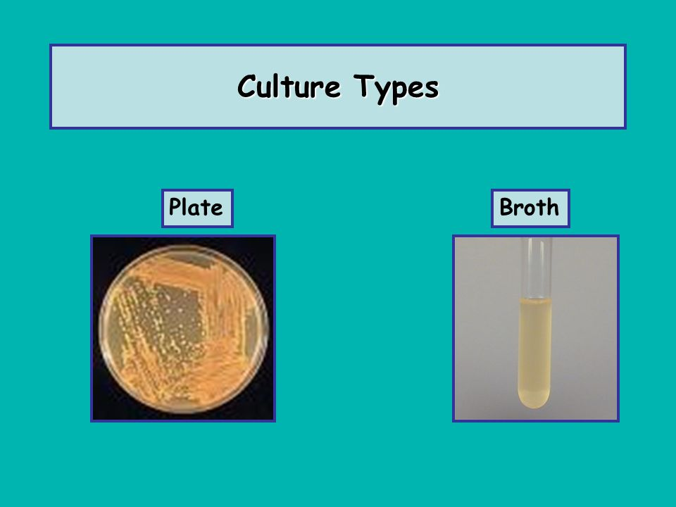 Culture Types Plate Broth