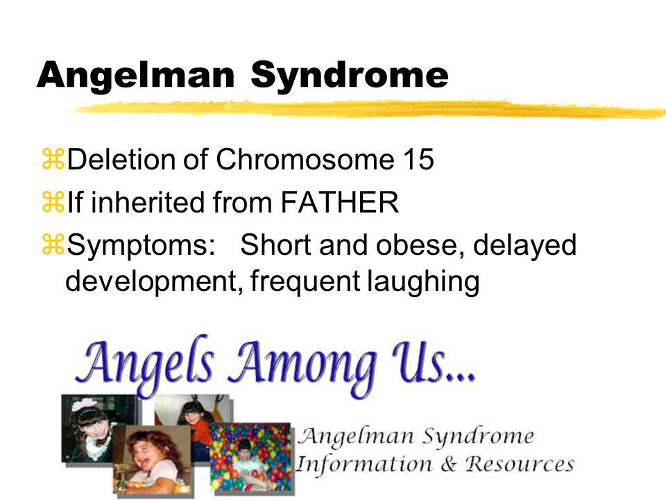 Angelman Syndrome Deletion of Chromosome 15 If inherited from FATHER