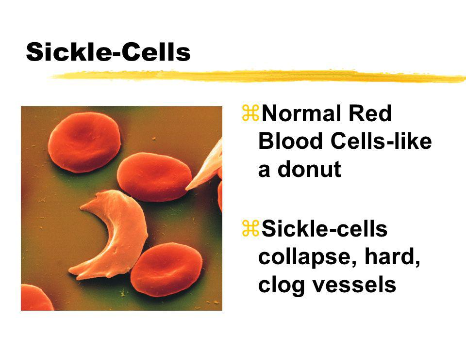 Sickle-Cells Normal Red Blood Cells-like a donut