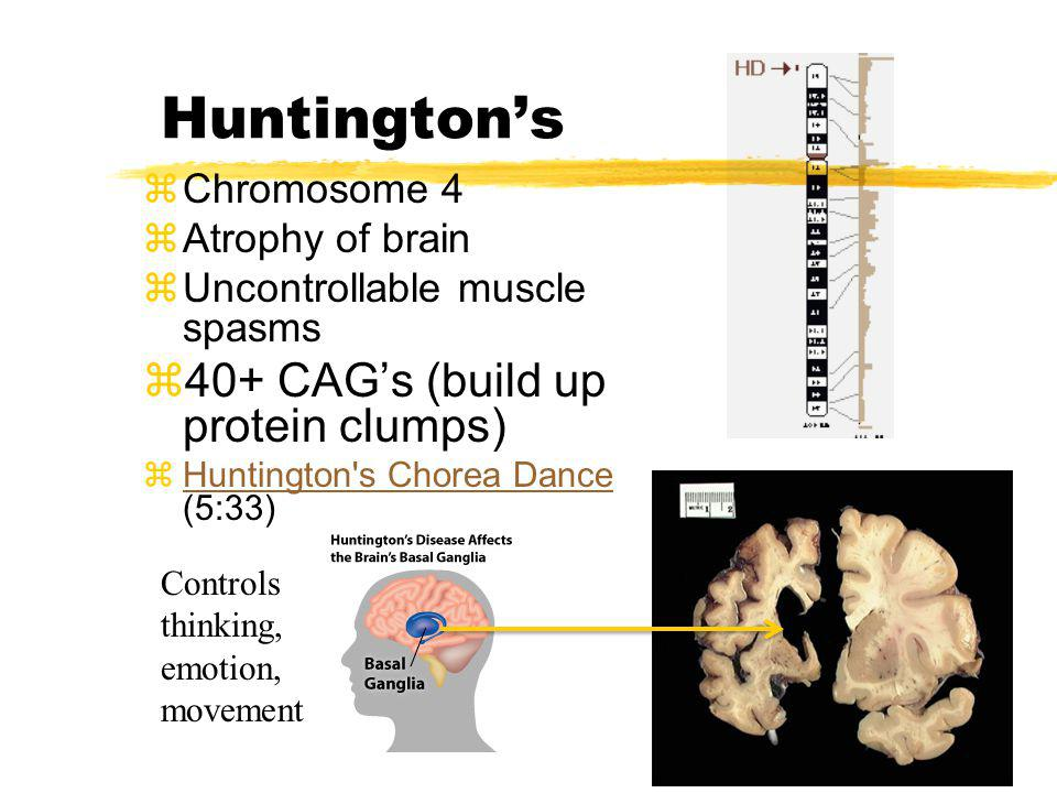 Huntington's 40+ CAG's (build up protein clumps) Chromosome 4