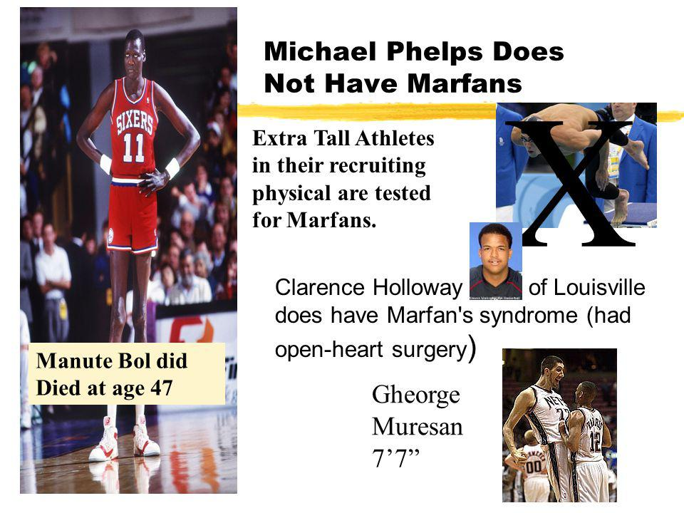 Michael Phelps Does Not Have Marfans