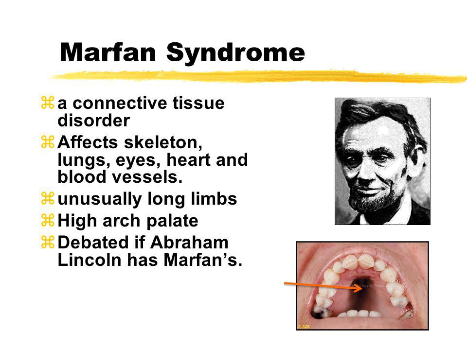 Marfan Syndrome a connective tissue disorder