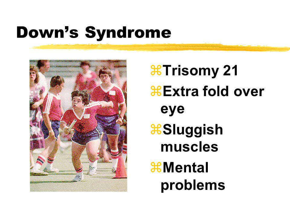 Down's Syndrome Trisomy 21 Extra fold over eye Sluggish muscles