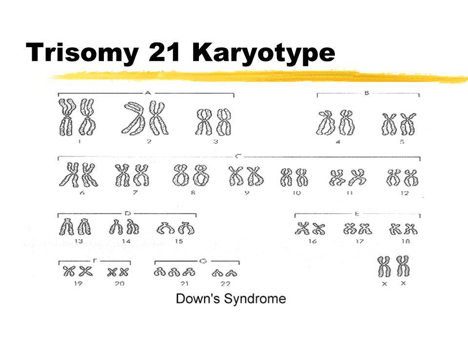 Trisomy 21 Karyotype