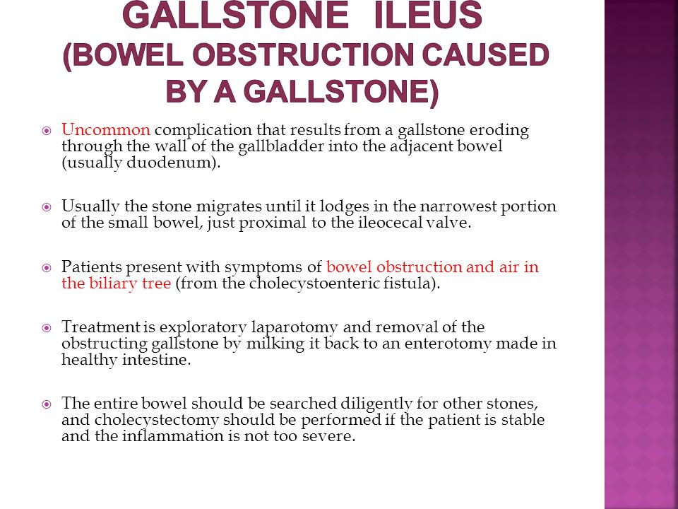 Gallstone ileus (bowel obstruction caused by a gallstone)
