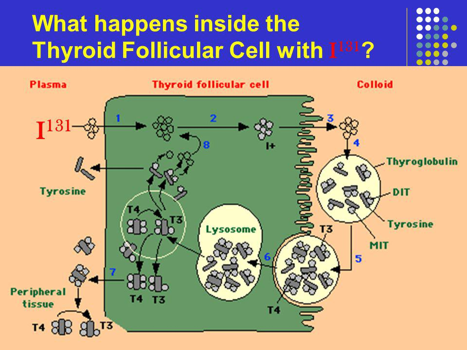 What happens inside the Thyroid Follicular Cell with I131