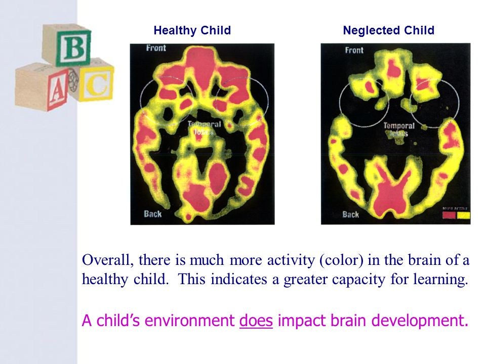 A child's environment does impact brain development.
