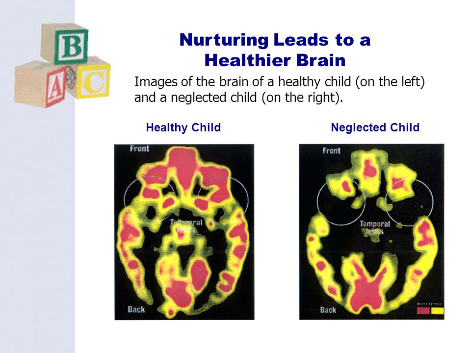Nurturing Leads to a Healthier Brain