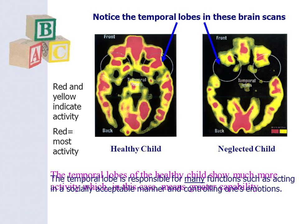 Notice the temporal lobes in these brain scans