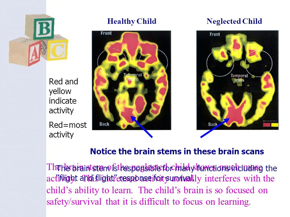 Healthy Child Neglected Child. Red and yellow indicate activity. Red=most activity. Notice the brain stems in these brain scans.