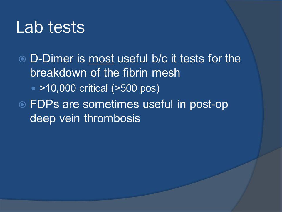 Lab tests D-Dimer is most useful b/c it tests for the breakdown of the fibrin mesh. >10,000 critical (>500 pos)