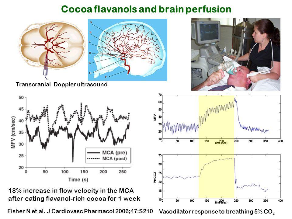 Cocoa flavanols and brain perfusion