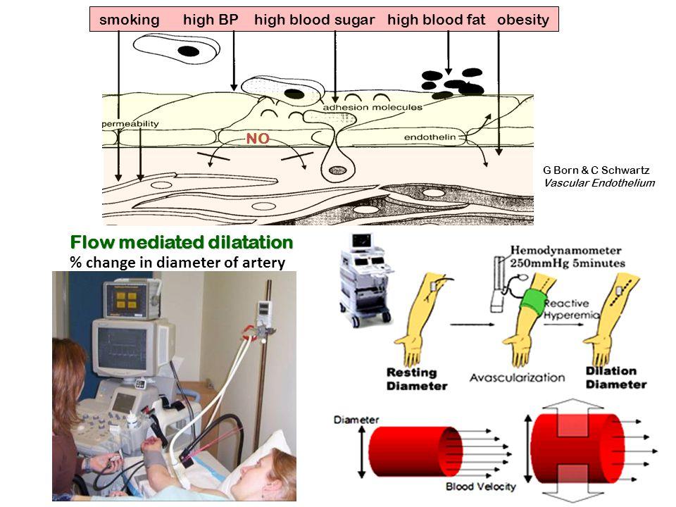 % change in diameter of artery Flow mediated dilatation