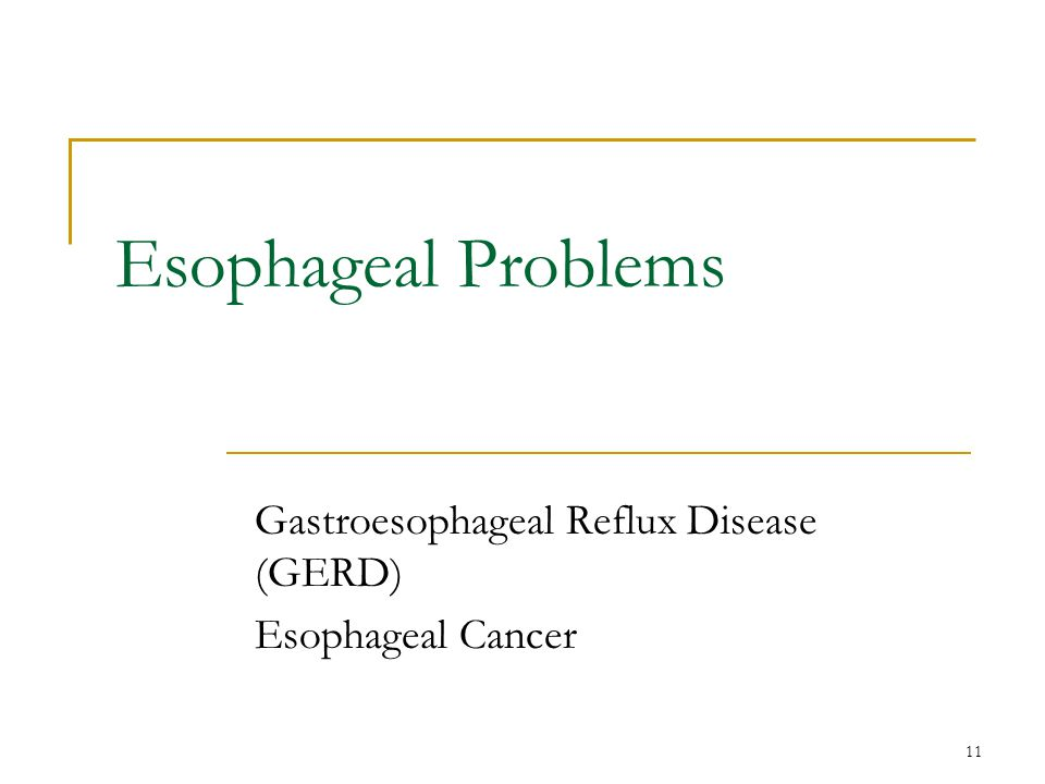 Gastroesophageal Reflux Disease (GERD) Esophageal Cancer