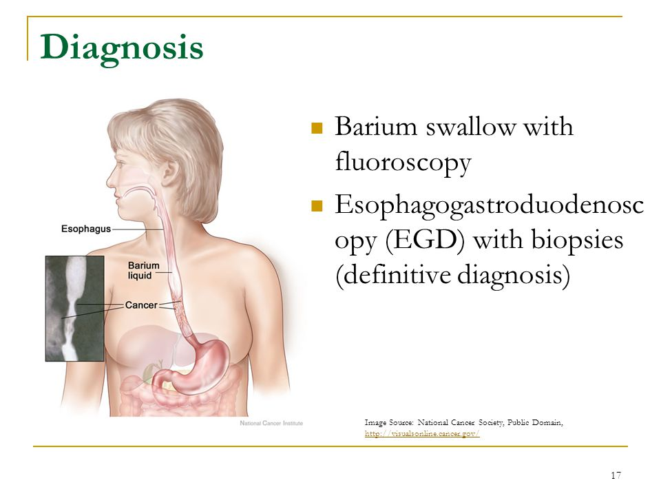 Diagnosis Barium swallow with fluoroscopy