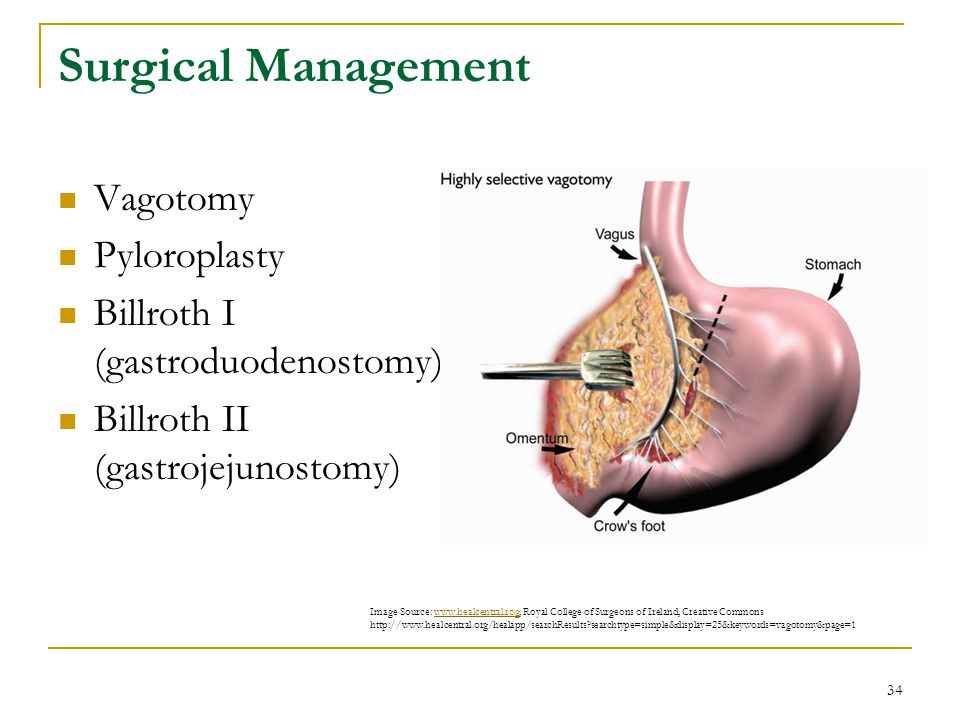 Surgical Management Vagotomy Pyloroplasty