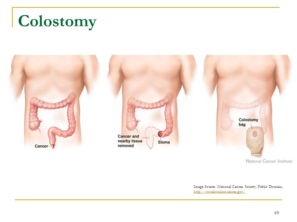 Colostomy Surgical Treatment: Colostomy