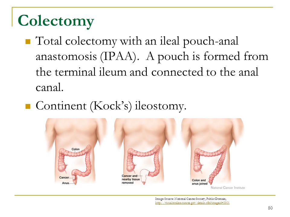 Colectomy Total colectomy with an ileal pouch-anal anastomosis (IPAA). A pouch is formed from the terminal ileum and connected to the anal canal.