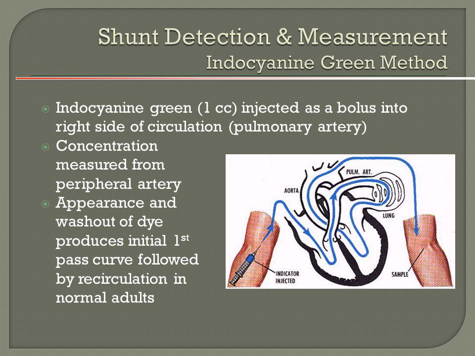 Shunt Detection & Measurement Indocyanine Green Method