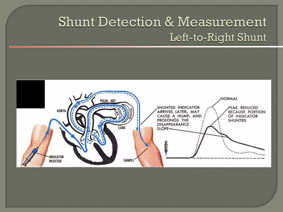 Shunt Detection & Measurement Left-to-Right Shunt