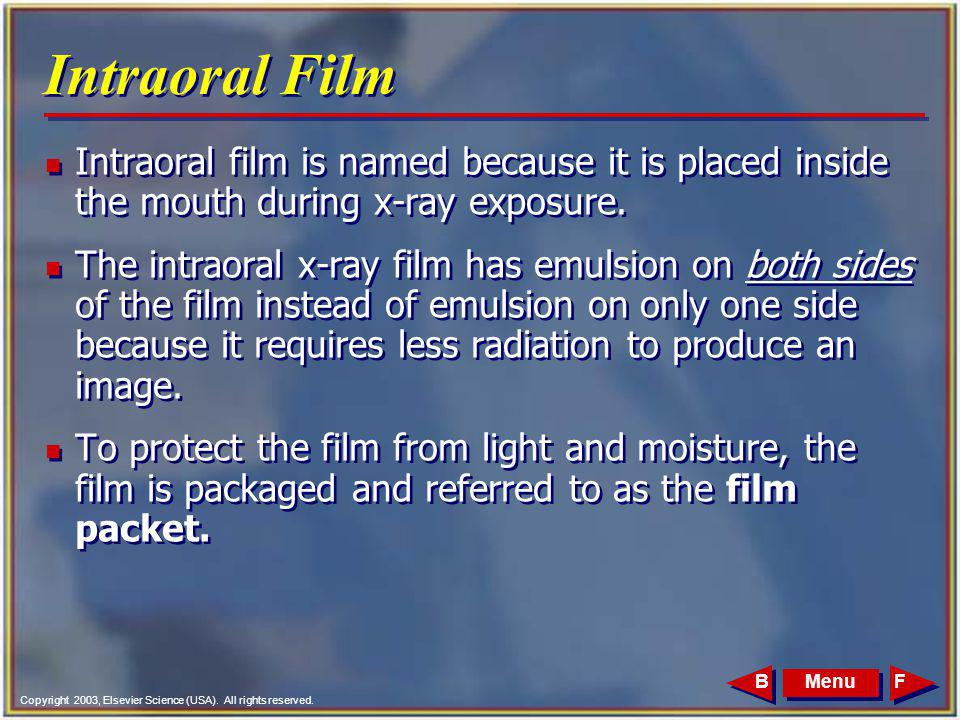 Intraoral Film Intraoral film is named because it is placed inside the mouth during x-ray exposure.