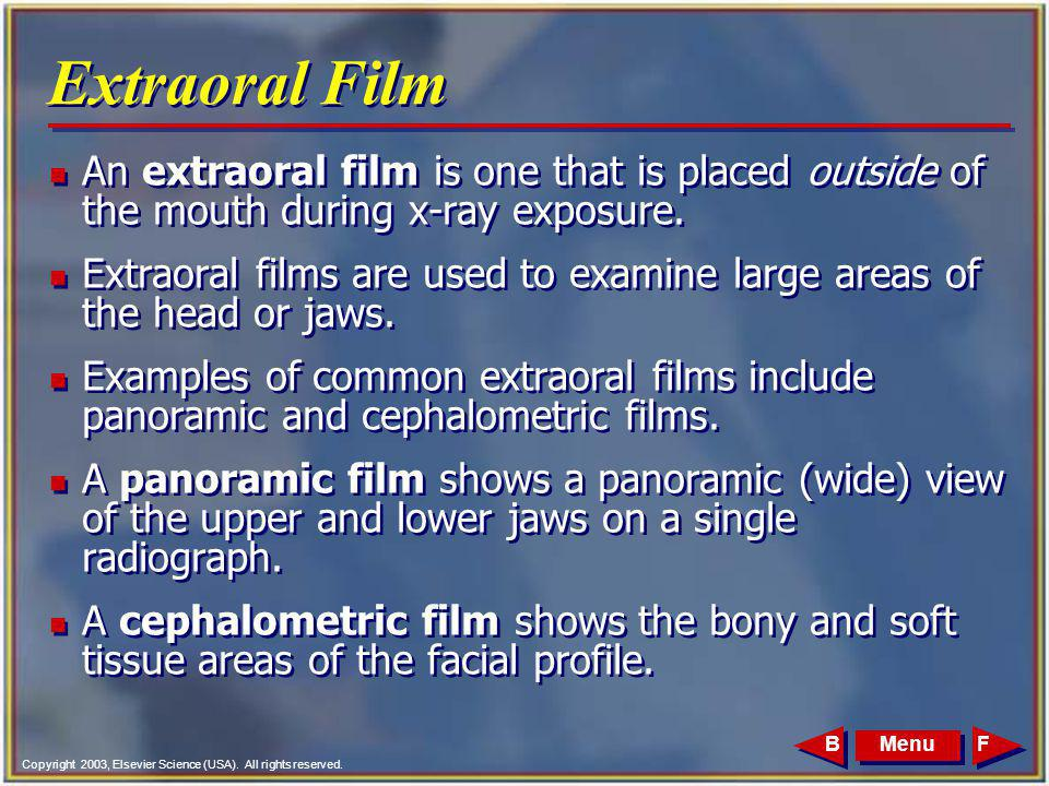 Extraoral Film An extraoral film is one that is placed outside of the mouth during x-ray exposure.