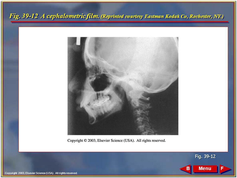 Fig. 39-12 A cephalometric film