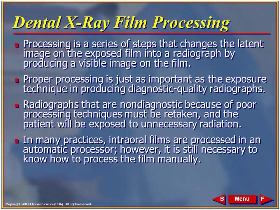 Dental X-Ray Film Processing