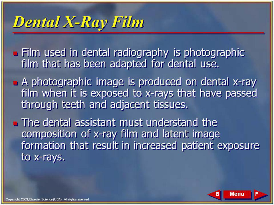 Dental X-Ray Film Film used in dental radiography is photographic film that has been adapted for dental use.