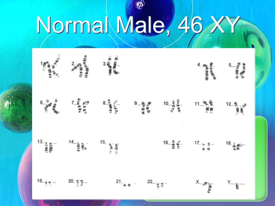 Normal Male, 46 XY