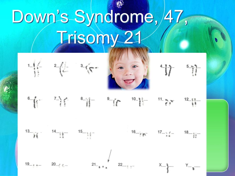 Down's Syndrome, 47, Trisomy 21