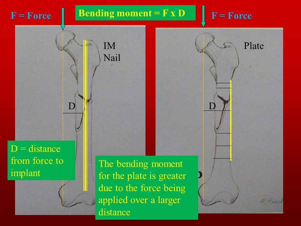 Bending moment = F x D F = Force. F = Force. IM Nail. Plate. D. D. D = distance from force to implant.