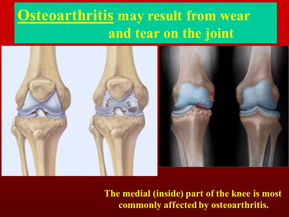 Osteoarthritis may result from wear and tear on the joint