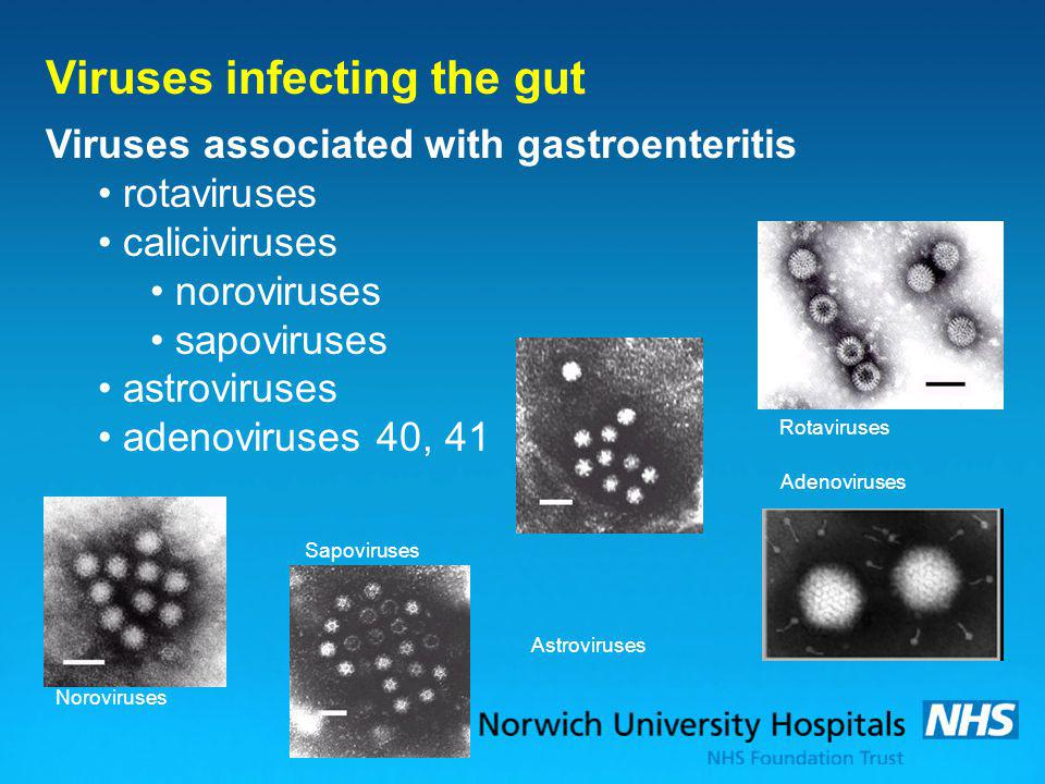 Viruses infecting the gut