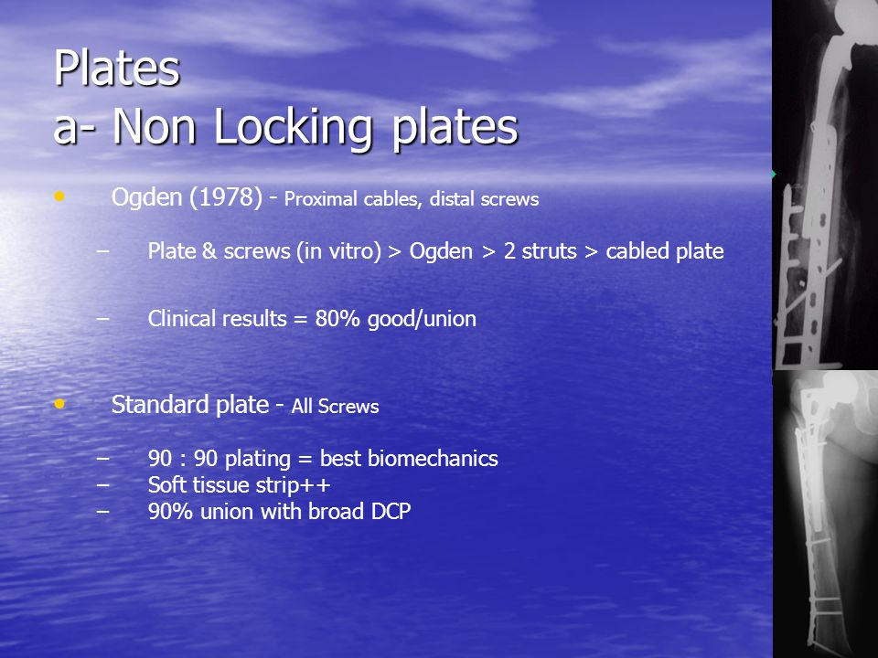 Plates a- Non Locking plates